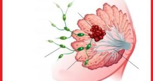 cancer-www.jatirkhantha.com.bd